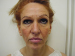 Rhytidectomy (Facelift Surgery)