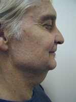 Rhytidectomy (Facelift Surgery)