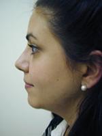 Rhinoplasty (Nasal Surgery)
