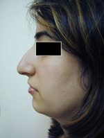 Rhinoplasty (Nasal Surgery)