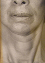 Face and Neck