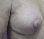 Mastopexy (Breast Lift)