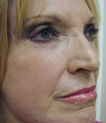 Facial Fillers (Laser)