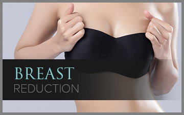 Breast Reduction – Female