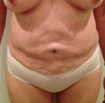 Reverse Tummy Tuck