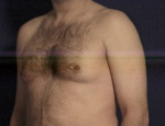 Gynecomastia (Male Breast)