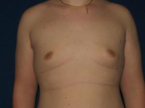 Gynecomastia (Male Breast)